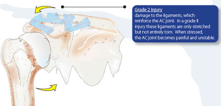 AC Joint Separation Grade 2