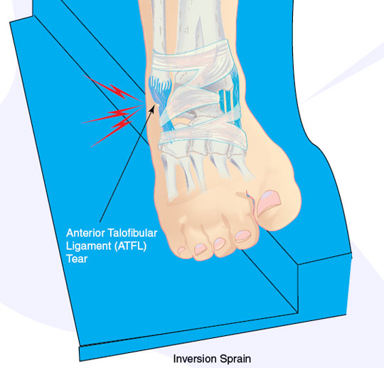 inversionsprain What ankle support is right for my sprained ankle?