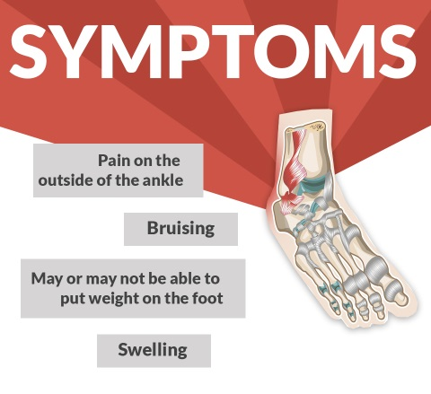 sprained ankle symptoms
