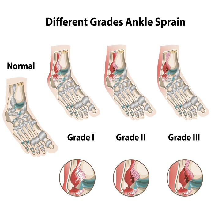 3 grades of ankle sprains