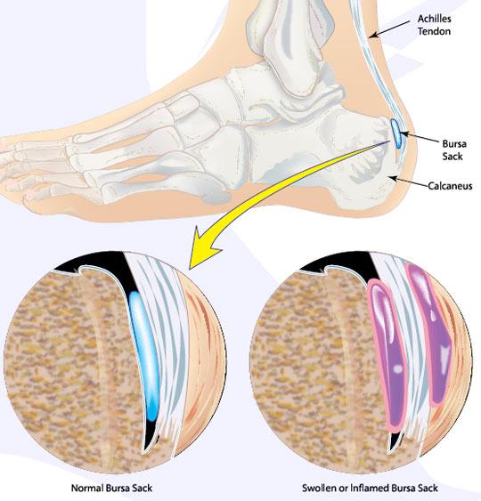 Achilles Bursitis Causes, Symptoms, Treatment