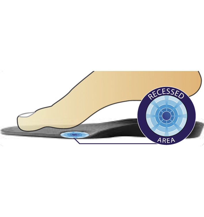 f3f0adeec2 DonJoy Arch Rival - Foot Orthotic