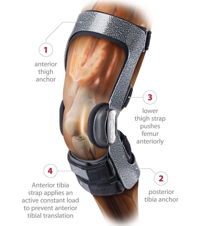 Donjoy Armor Knee Brace With Fourcepoint Hinge