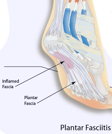 Plantar Fasciitis Causes, Symptoms and Treatment