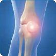 Patella Dislocations