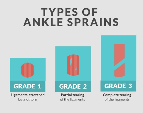 different types of ankle sprain Bsn medical's products for ankle sprain therapy enable efficient treatment with a   the severity of ankle sprains is classified in three grades, each with different.
