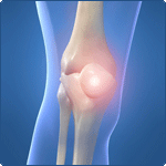 Patella Dislocations