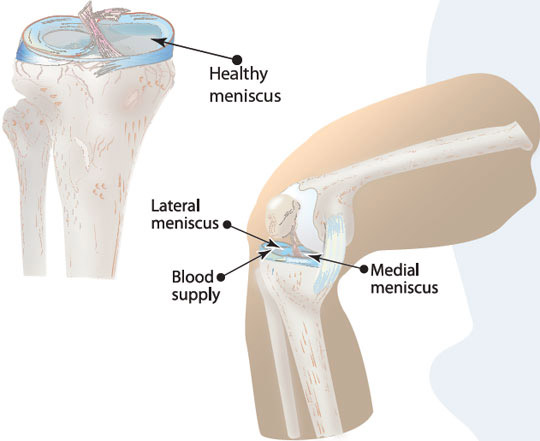 Meniscus Injuries- Symptoms, Causes, Treatment