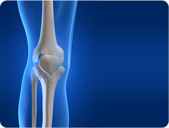 Common Knee Injuries - Dislocated Kneecap